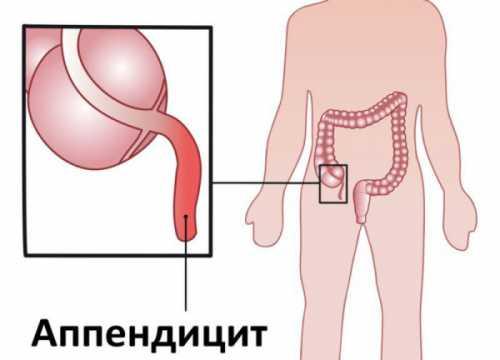 разрешены ли суши во время беременности