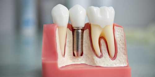выравнивание зубов взрослому и ребенку: выбор подходящего метода